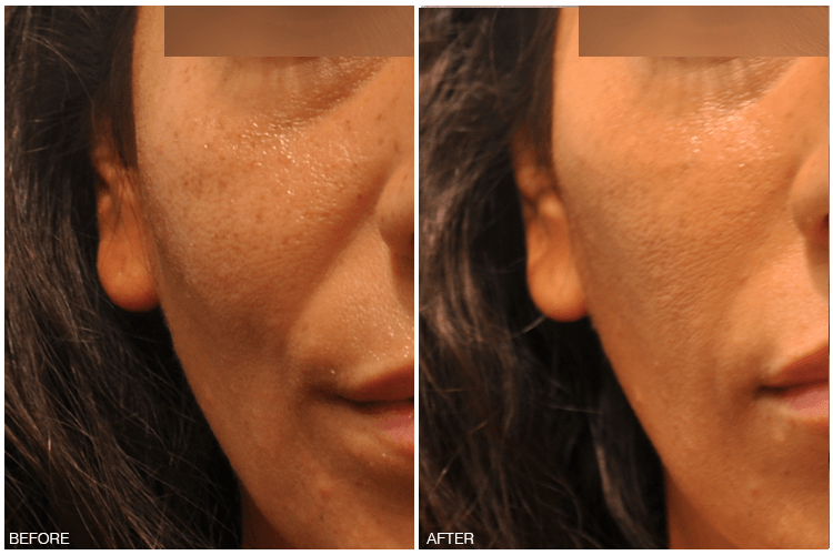 Non-Surgical Solutions/Radiesse® – Anaphora by Dr  Christine
